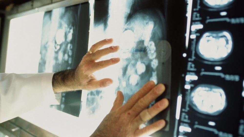 В Воронежской области выявлено 65 тыс человек, больных раком