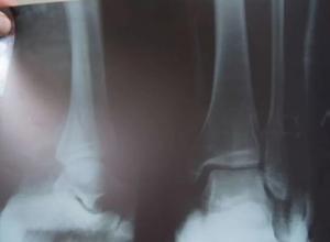 Водителя воронежского автобуса, из-за которого девочка переломала ноги, могут депортировать в Донецк