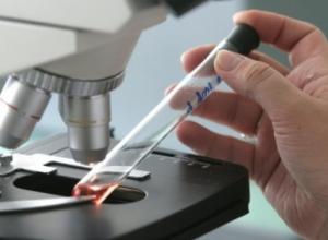 Трехлетнюю девочку заразили гепатитом С в Воронежской области