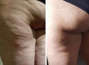 Жительница Воронежа показала шикарные результаты своего похудения и шокировала главными секретами