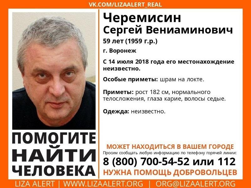 Мужчину со шрамом на локте разыскивают в Воронеже