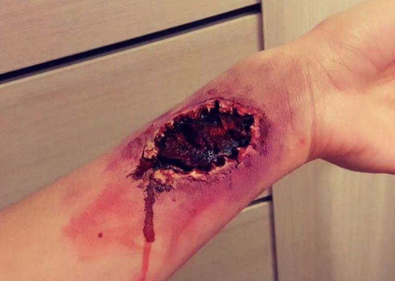 Реалистичным тату гангрены похвасталась на видео жительница Воронежа